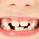 ¿Por qué la Agenesia dentaria de incisivos laterales es la más visible?