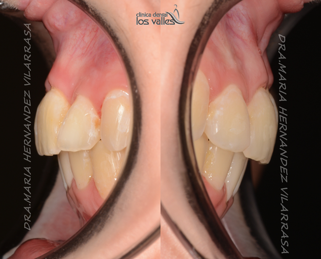 La Dra. Virginia García, periodoncista, ejecutando un tratamiento periodontal y mantenimiento de las encías para tener en todo momento controlada la piorrea.
