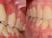 ortodoncia-final