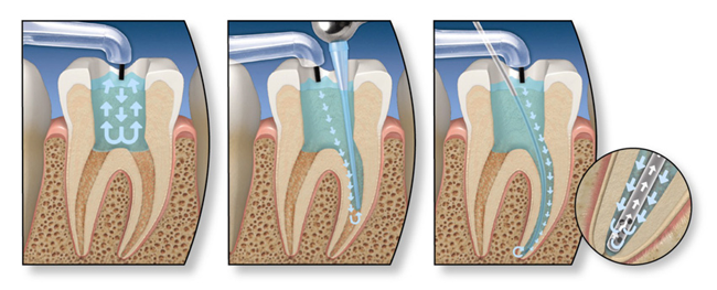 endodoncia-multirradicular1