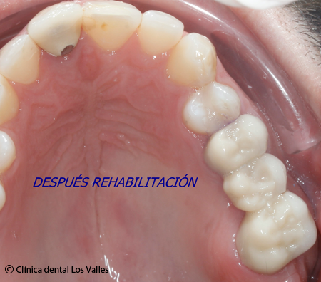 endodoncia-multirradicular-despues