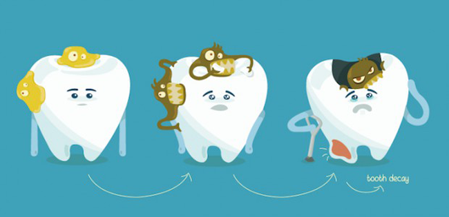 caries-fases
