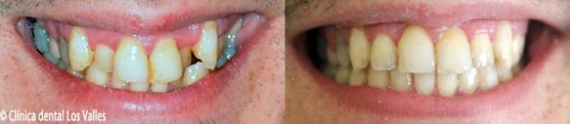 tratamiento-brackets-final-guadalajara-637x139