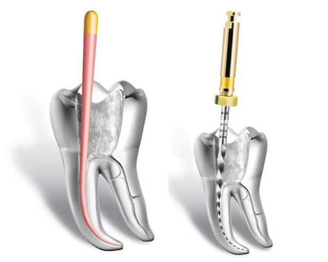 endodoncia-rotatoria