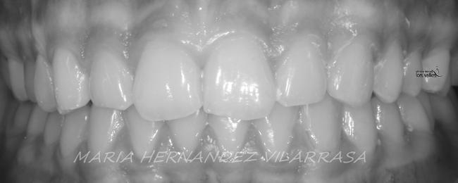 diastemas-2