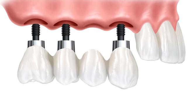 ¿Cuánto cuesta un implante dental? Alrededor de 1.000€.