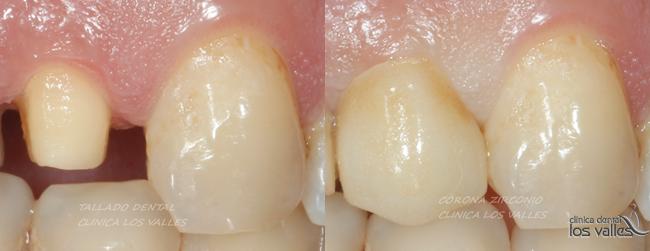 Caso clínico con fundas de circonio tras una endodoncia.