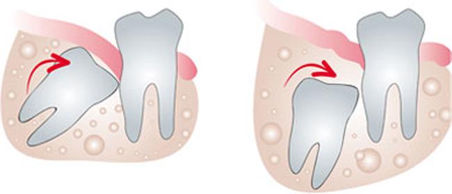 Los dientes impactados suelen tener una carga genética.