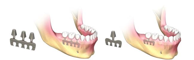 implantes dentales laminados