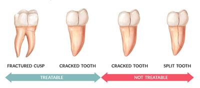 El tratamiento de un diente fisurado va a depender de la localización y de la extensión de la fisura. Ten en cuenta que las microfisuras que se producen en el esmalte dental con la edad no se tratan, son simplemente un problema estético.