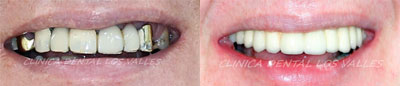 Caso clínico de éxito con implantes dentales de carga inmediata.