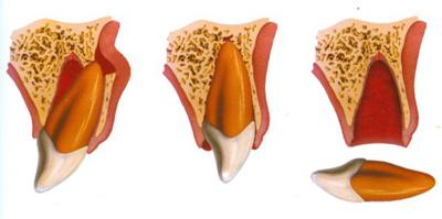 Tienes que localizar el diente y enjuagarlo con agua si está sucio; cógelo por la corona y procura no tocar la raíz del diente, ni lo cepilles ni uses jabón. Otra opción, antes de llegar a la consulta, es colocar el diente de nuevo en el alvéolo y presionarlo suavemente con una gasa mientras acudes al dentista.