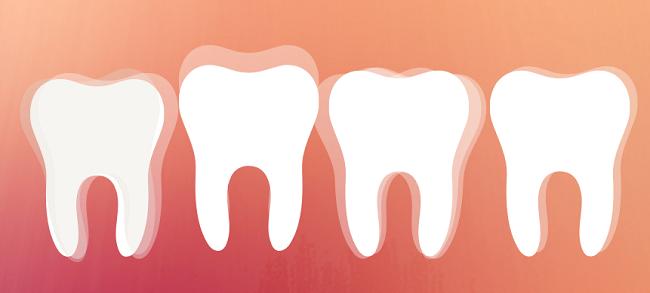 mis dientes se mueven