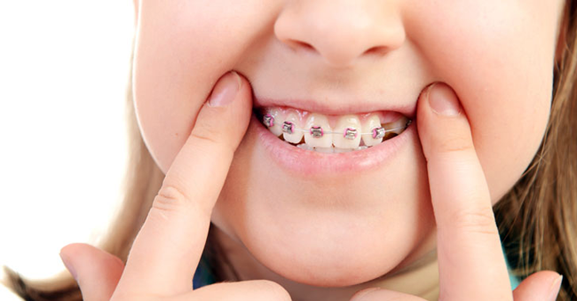 Uno de los tratamientos de la agenesia dental es la ortodoncia.