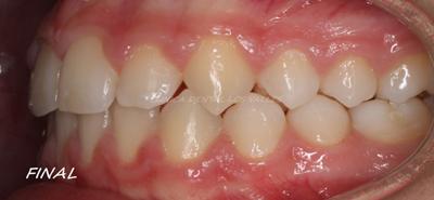 Caso final de odontopediatría tratado con ortodoncia interceptiva.