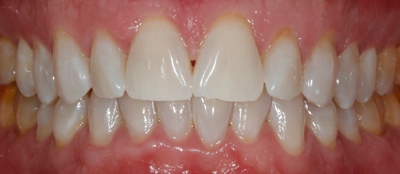 blanqueamiento-dental-3