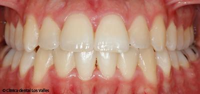 blanqueamiento-dental-guadalajara2