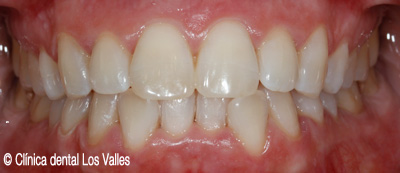 blanquemiento-dental-despues