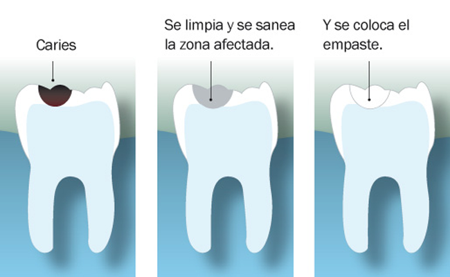 Fases de la caries dental.