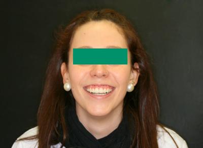 caso-ortodoncia-damon-guadalajara