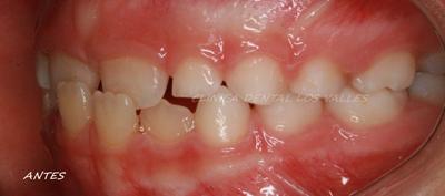 Caso clínico tratado con ortodoncia interceptiva en Clínica dental Los Valles de Guadalajara.