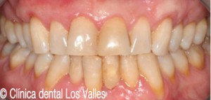 despues-periodontitis