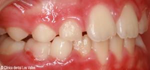 despues2-clinica-dental-guadalajara
