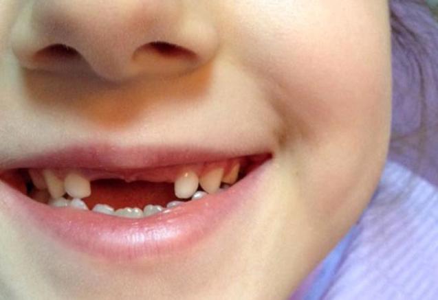 ¿Por qué es tan importante revisar con tu Odontopediatra si tu hijo tiene caries en su dentición temporal y permanente?