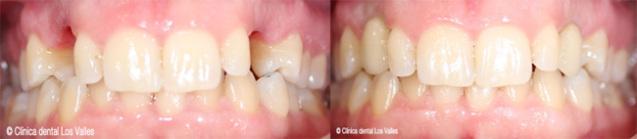 Devolviendo sonrisas y confianza con un tratamiento de implante dental