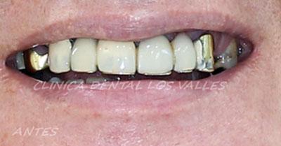 El paciente acudió a nuestra clínica dental en Guadalajara con unos puentes metálicos antiguos, rotos, desajustados y fracturados en la porcelana que le afeaban la sonrisa; incluyendo, además, restos de raíces rotas que le habían producido números episodios de infección dental.