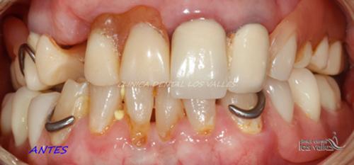 implantes-dentales-3