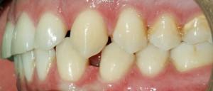 Imagen antes de la ortodoncia con brackets Damon.   © Clínica dental Los Valles