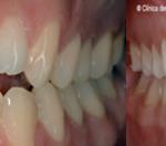 ortodoncia-damon-guadalajara6