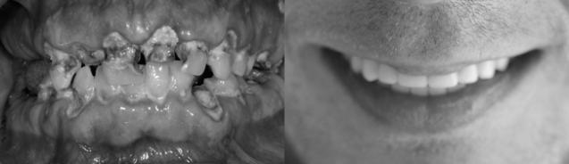 ¡Recupera tu sonrisa con implantes dentales!